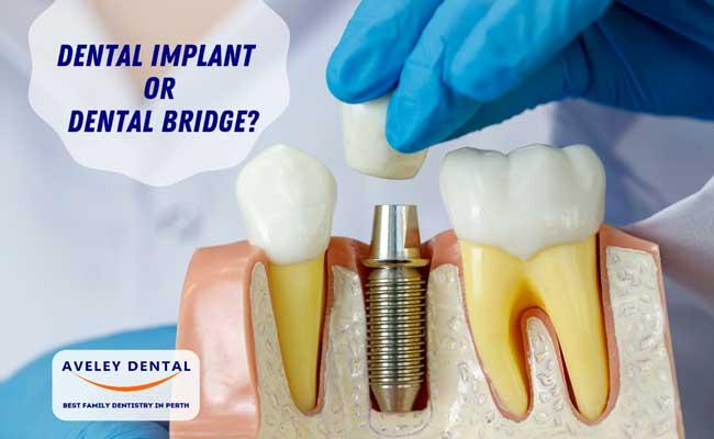 Dental Implants Vs Dental Bridge